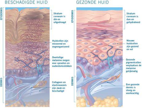dermavitaal - beschadigde huid