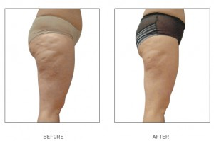lpg endermologie cellulite